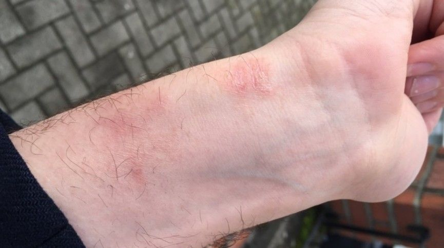 apple watch irritation